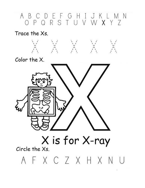 Letter X, : X Ray for Letter X Coloring Page